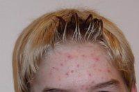 L'acné et la gravité inversé