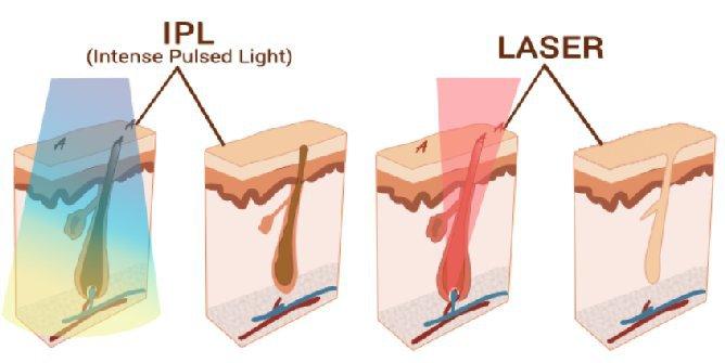 Lausanne: épilation laser chez Entourage