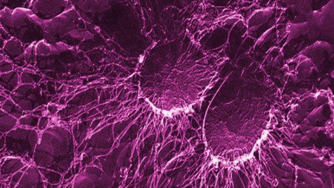 De nouvelles pistes pour soigner les infections nosocomiales