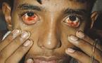Epidémie de dengue aux Antilles