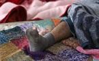 Sciences: Des chaussettes sales contre le palu
