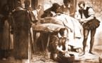 Bordeaux: une femme amputée des 4 membres après une IVG