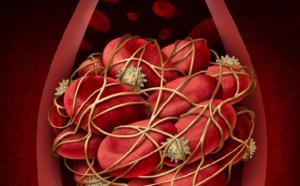 Thrombose veineuse: quels sont les risques?